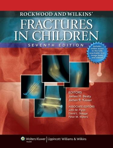 Rockwood and Wilkins fracture in children 7