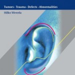 Surgery of the Auricle: Tumors-Trauma-Defects-Abnormalities