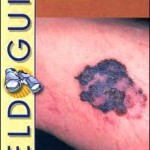 Field Guide to Clinical Dermatology                    / Edition 2