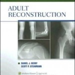 Orthopaedic Surgery Essentials Series: Adult Reconstruction