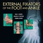 External Fixators of the Foot and Ankle