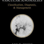 Vascular Anomalies: Classification, Diagnosis, and Management