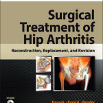 Surgical Treatment of Hip Arthritis  : Reconstruction, Replacement, and Revision