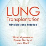 Lung Transplantation  :  Principles and Practice