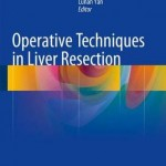 Operative Techniques in Liver Resection 2016