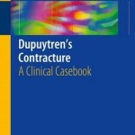 Dupuytren's Contracture 2016 : A Clinical Casebook