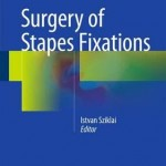 Surgery of Stapes Fixations 2016