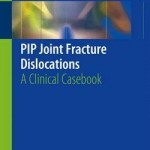 Pip Joint Fracture Dislocations 2016 : A Clinical Casebook