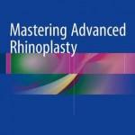 Mastering Advanced Rhinoplasty 2016