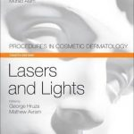 Lasers and Lights : Procedures in Cosmetic Dermatology Series