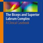 The Biceps and Superior Labrum Complex