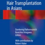 Practical Aspects of Hair Transplantation in Asians