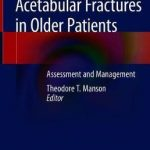 Acetabular Fractures in Older Patients : Assessment and Management