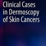 Clinical Cases in Dermoscopy of Skin Cancers