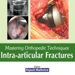 Mastering Orthopedic Techniques: Intra-articular Fractures