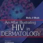 An Atlas Illustrating HIV in Dermatology
