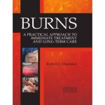 Burns : A Practical Approach to Immediate Treatment and Long Term Care