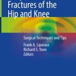 Periprosthetic Fractures of the Hip and Knee