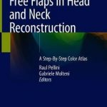 Free Flaps in Head and Neck Reconstruction : A Step-By-Step Color Atlas