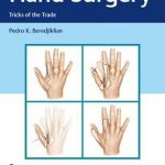 Hand Surgery : Tricks of the Trade