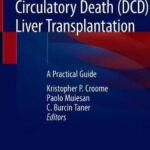 Donation after Circulatory Death (DCD) Liver Transplantation : A Practical Guide