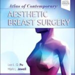 Atlas of Contemporary Aesthetic Breast Surgery : A Comprehensive Approach